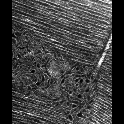 flight muscle cell